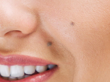 Why Do We Have Moles On Our Skin?