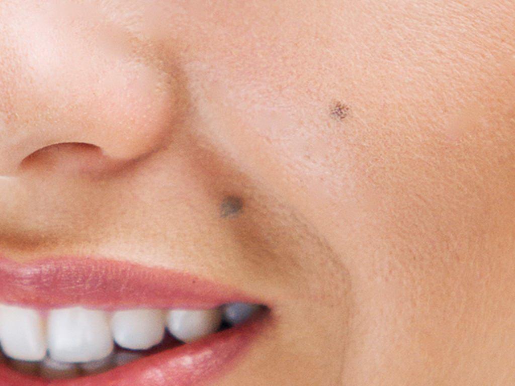 moles-skin-lesions